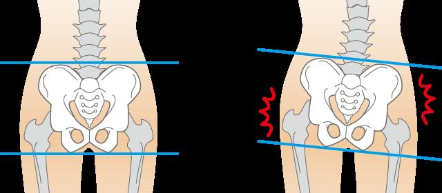 慢性腰痛3