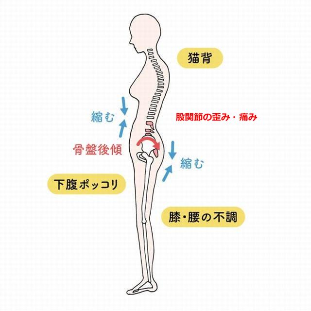 痛み 足 の 付け根